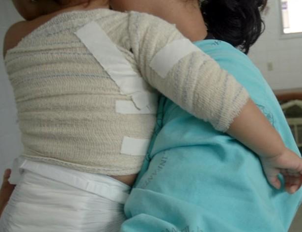 Cerca de 13.500 pessoas sofreram queimaduras no Ceará em 2012