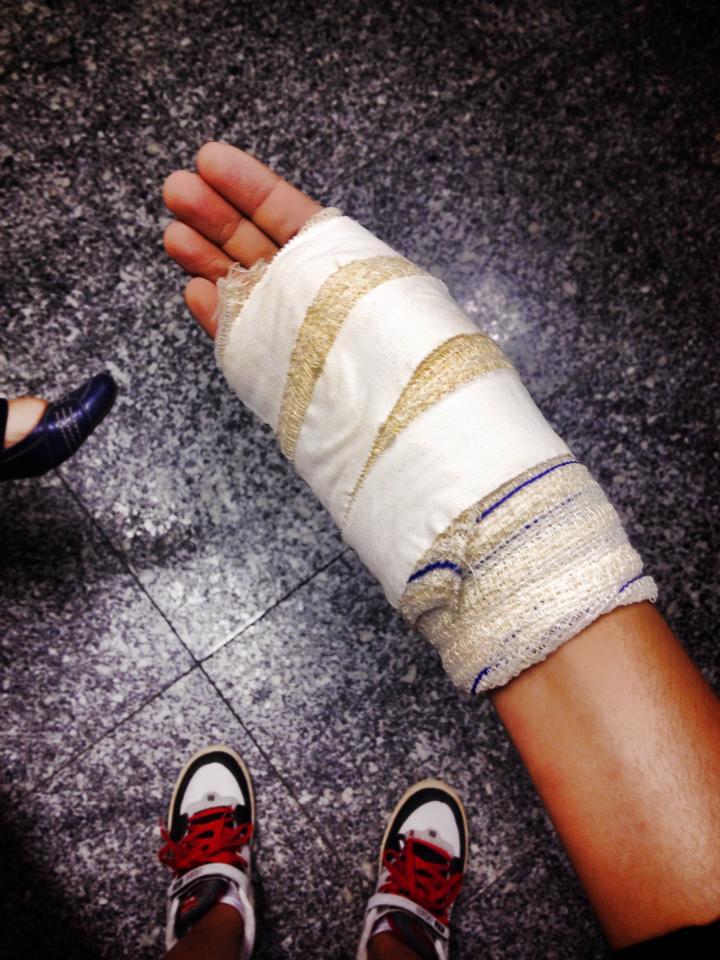 A universitária Luana Carvalho, que faz Publicidade e Propaganda, sofreu uma tentativa de assalto, que resultou na sua mão enfaixada