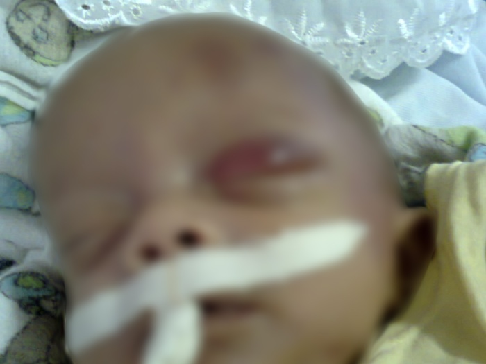 A criança estava internada desde o último sábado com diagnóstico de amarelão (FOTO: Divulgação)