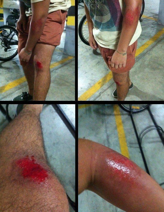 Ciclista foi arrastado por carro em Fortaleza (FOTO: Arquivo pessoal/Leonardo Ribeiro)