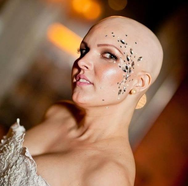 Carol foi diagnosticada com o tipo universal da doença, que resulta na perda de todos os pelos do corpo (FOTO: Arquivo pessoal)