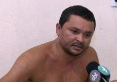 Motorista que teve corpo queimado perdoa criminosos (FOTO: Reprodução TV Jangadeiro)