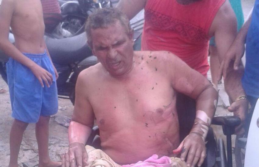Cobrador deficiente atingido por chamas é entubado com 90% do corpo queimado