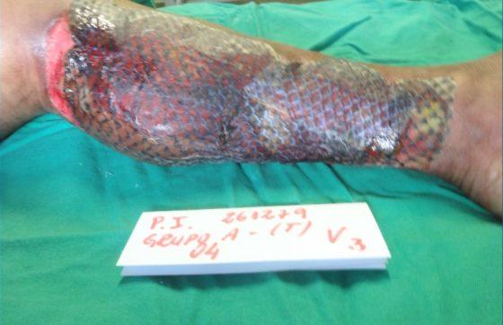 A pele de tilápia é eficaz na cicatrização de queimaduras (FOTO: Reprodução/TV Jangadeiro)