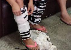 Pernas com celulares em referência a Duas mulheres são presas ao tentar entrar em presídio com drogas e celulares