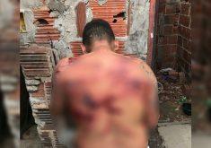 O jovem foi conduzido ao IJF após ser torturado por criminosos (Foto: Reprodução/WhatsApp)