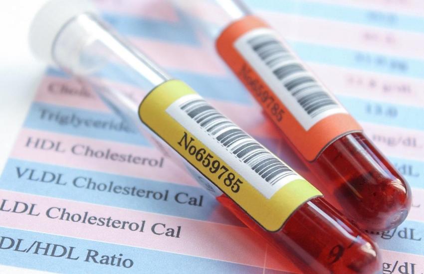 Mais de 57 milhões de pessoas desconhecem sua taxa de colesterol, aponta pesquisa