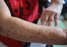 Câncer de pele é o mais comum do Brasil (FOTO: Divulgação)
