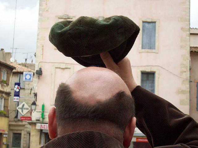 A testosterona, hormônio sexual masculino, é a maior responsável pela queda de cabelo. (FOTO: Flickr/ Creative Commons/ Only Tradition)