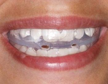 Placa estabilizadora é um dos tratamentos para os pacientes (Foto: Divulgação)