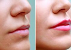 A micropigmentação nos lábios já é uma realidade nos salões de beleza da capital (FOTO: Divulgação)