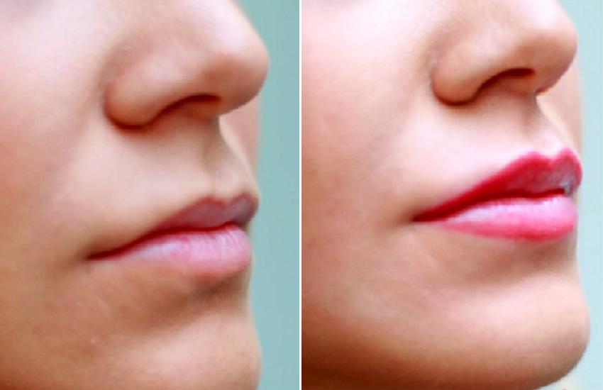 Lábios podem ganhar volume e simetria através de nova técnica: a micropigmentação