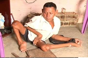 Cearense com paralisia se tornou artesão e vive normalmente