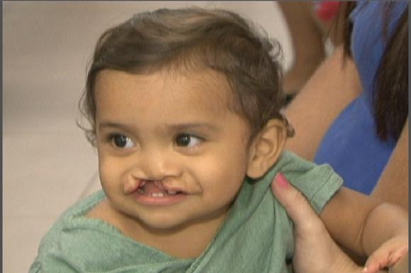 Projeto ajuda pessoas com lábio leporino (FOTO: Reprodução TV Jangadeiro)