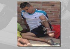 A Deficiência física não impede ladrão (FOTO: Reprodução TV Jangadeiro)
